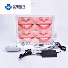 寶來牙科內窺鏡一體機高清口腔內窺鏡攝像頭帶17寸顯示器