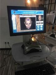 臺灣CBS 3D毛囊檢測儀