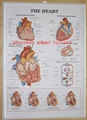 HEART--3D EMBOSSED WALL PVC CHART/POSTER