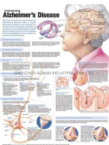 阿尔茨海默病三维立体PS/PET医学挂图/广告画 1
