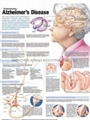 ALZHEIMER'S DISEASE--3D RELIEF WALL MEDICAL/PHARMA CHART/POSTER