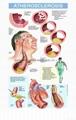 動脈粥樣硬化---三維立體PS