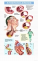 ATHEROSCLEROSIS--3D RELIEF WALL MEDICAL