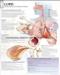 慢性阻塞性肺病(慢性阻塞性肺病)---三維立體PS/PET醫學挂圖/廣告畫
