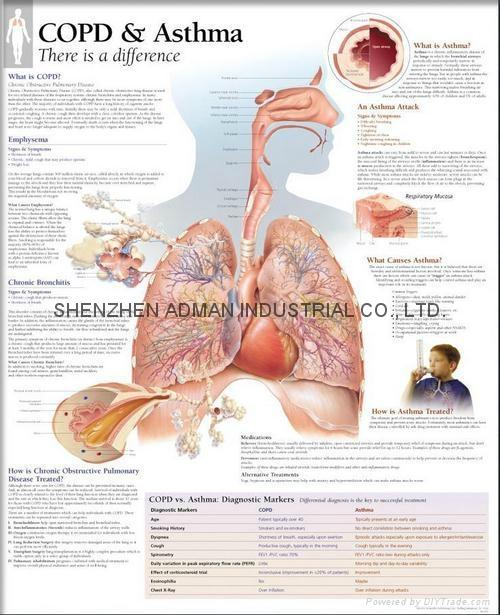 哮喘---三维立体PS/PET医学挂图/广告画 1