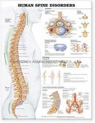 人类脊柱疾病---三维立体PS/PET医学挂图/广告画