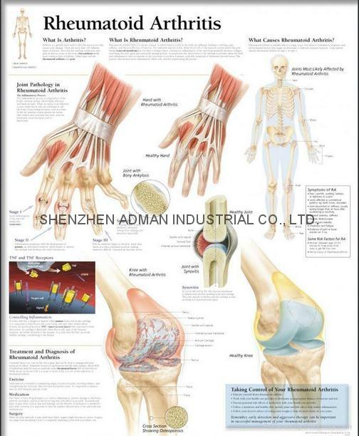 类风湿性关节炎---三维立体PS/PET医学挂图/广告画 1