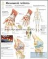 RHEUMATOID ARTHRITIS--3D RELIEF WALL