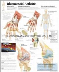 RHEUMATOID ARTHRITIS--3D RELIEF WALL MEDICAL/PHARMA CHART/POSTER