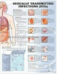 性傳播感染(  )---三維立體PS/PET醫學挂圖/廣告畫