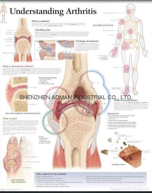 理解关节炎--三维立体PS/PET医学挂图/广告画 1