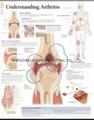 UNDERSTANDING ARTHRITIS--3D RELIEF WALL