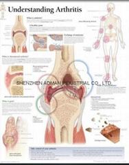理解關節炎--三維立體PS/PET醫學挂圖/廣告畫