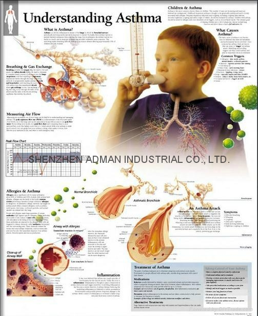 UNDERSTANDING ASTHMA--3D RELIEF WALL MEDICAL/PHARMA CHART/POSTER