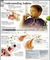 了解哮喘--三维立体PS/PE