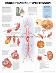了解高血壓--三維立體PS/PET醫學挂圖/廣告畫