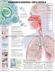 了解流感--三維立體PS/PET醫學挂圖/廣告畫