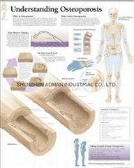 了解骨质疏松症--三维立体PS/PET医学挂图/广告画