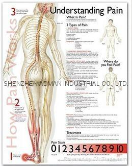 了解疼痛症--三維立體PS/PET醫學挂圖/廣告畫