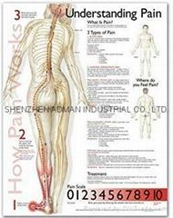 了解疼痛症--三维立体PS/PET医学挂图/广告画