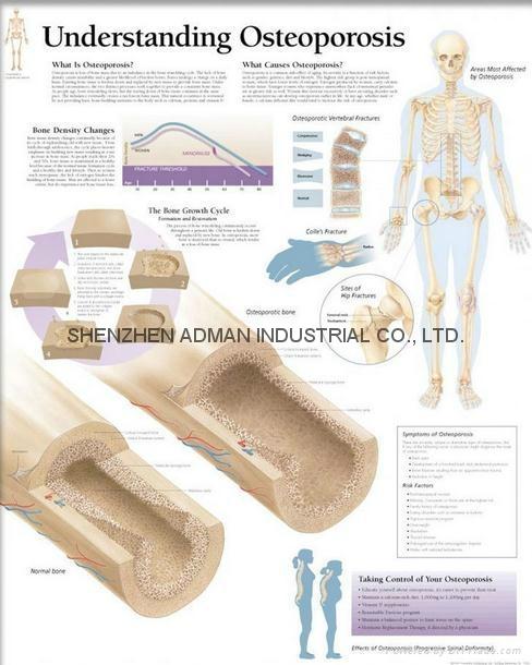 了解骨质疏松症-三维立体PS/PET医学挂图/广告画 1