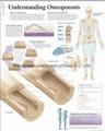 了解骨质疏松症-三维立体PS/