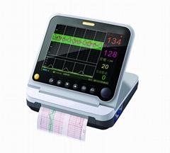 ultrasonic fetal monitor