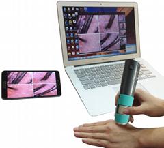 無線wifi頭皮檢測儀