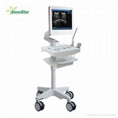 SS-100型触摸屏台车式超声显像诊断仪
