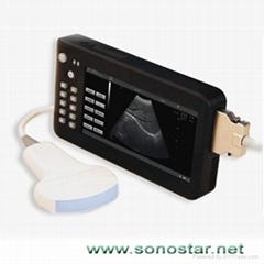 UPad-2掌上平板式超聲顯像診斷儀