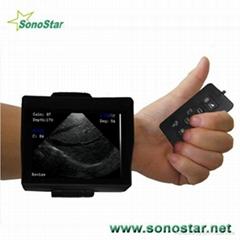 V2 Wrist Ultrasound Scan