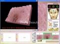 Portable skin analyzer 3D display 3