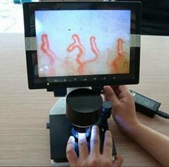 Portable Nail fold microcirculation microscope