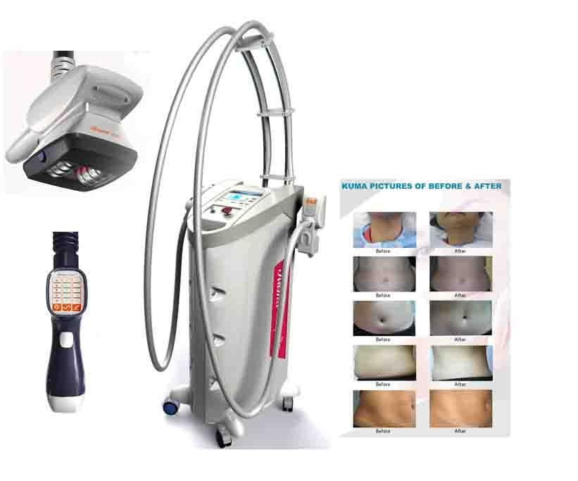 Kuma shape & Velashape & LPG cellulite reduction machine ...