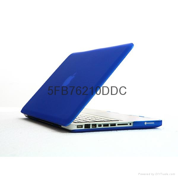 苹果笔记本外壳 Pro磨砂壳 彩色保护壳 Macbook 13.3 Air 电脑壳 1