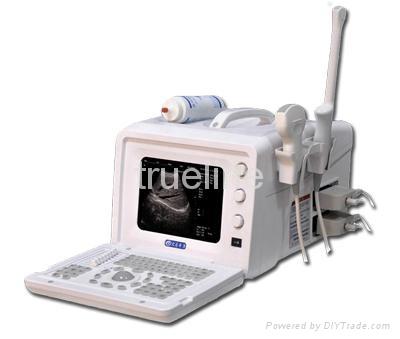 Full-digital Portable Ultrasound Scanner 1