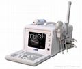 Full-digital Portable Ultrasound Scanner