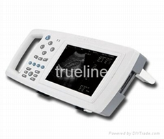 Handheld ultrasound scan