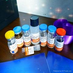 Human deoxypyridinoline (DPD) ELISA Kit