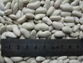 kidney beans 3