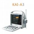 All Digital Portable Color Doppler Ultrasound System