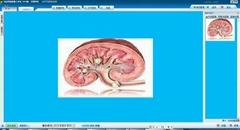 經皮腎鏡影像工作站
