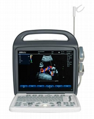 CE Approved Digital Portable Ultrasound Scanner(BCU-30)