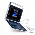 BPU60 Portable Color Doppler Ultrasound
