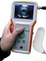 Family Used Bladder Ultrasound