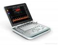 Notebook doppler ultrasound(Color