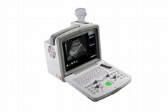 Digital Ultrasound Scanner