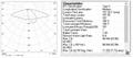 BUG standard Lens for Asymmetric beam Light in Horizontal ALST173D12LED3535T2M-H 3