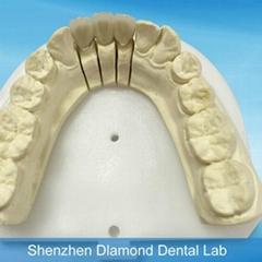 Denture supplier supplies Porcelain bonded to metal crown and bridge