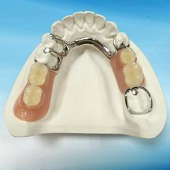 Dental Metal framework Partial dentures supplier